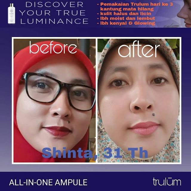 Jual Trulum Serum Anti Aging Di Wates