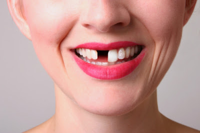 Ostematrix dan gigi