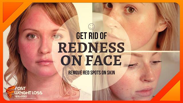 Get Rid Of Redness