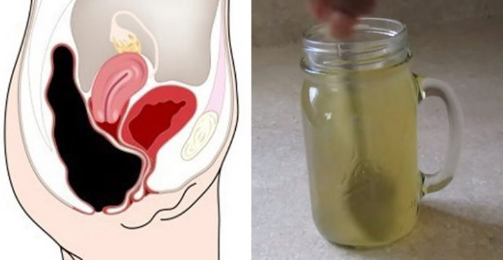 Mix Honey And Apple Cider Vinegar To Clear Your Colon Of Toxins