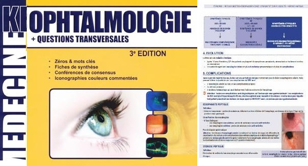 Télécharger KB Ophtalmologie PDF