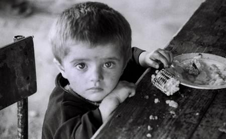 anak kurang nutrisi dan gizi