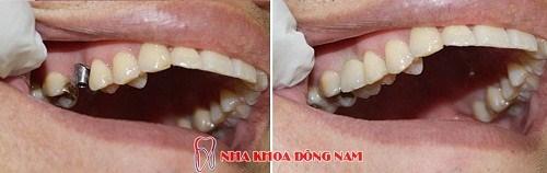 Giải Pháp Cấy Ghép Răng Nhanh -2