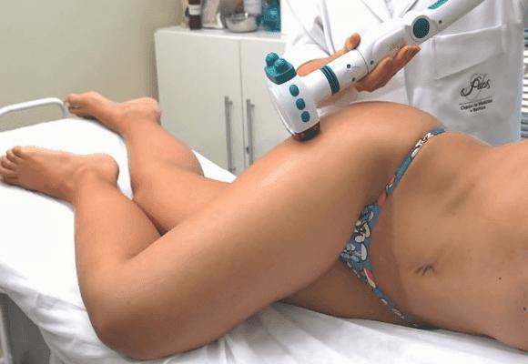 Celulite-tratamentos-laser