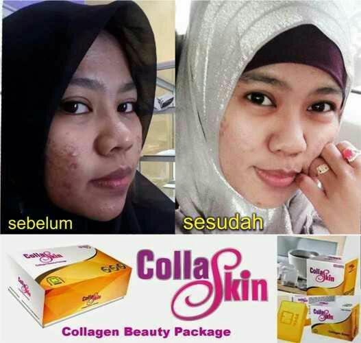 CollaSkin, Kembali Muda Cantik Alami