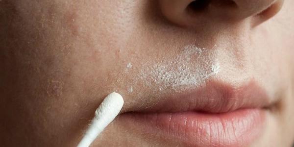 Cara Menyingkirkan Kumis Dengan cara Permanen dengan Bahan-Bahan Alami