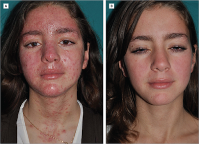Scarlet Letters, dealing with vascular rosacea, face