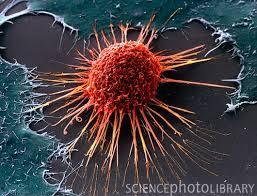 Kanser Hastalarında Karın Şişmesi Neden Olur