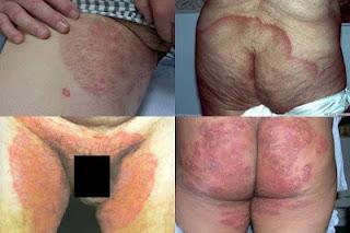 Obat Gatal Eksim Selangkangan Dan Pantat Merah & Hitam Ampuh