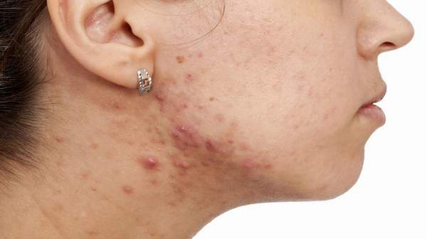 Top Tips For Hidradenitis Suppurativa Natural Treatment: eAskme