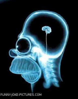 Funny X-Ray Picture Image Homer Simson