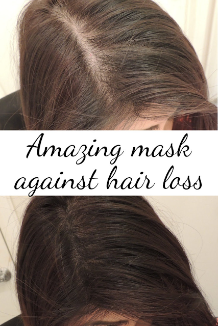 Mask against hair loss