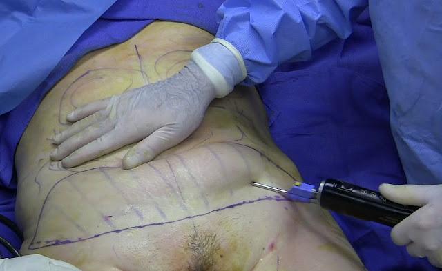Comment se passe une liposuccion du ventre?
