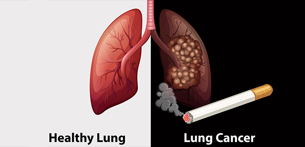 What Has to Be Known About Lung Cancer?