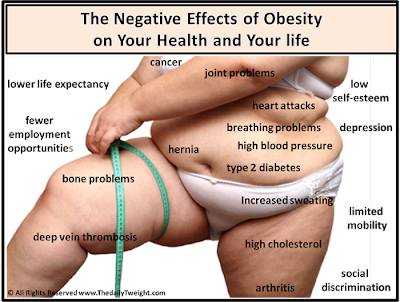 Suplemen Penurun Berat Badan Terpercaya