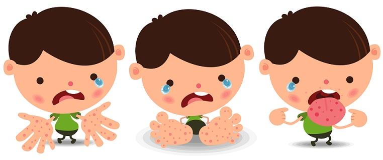 Cara Mengobati Flu Singapura Pada Anak