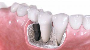 https://4.bp.blogspot.com/-1MsClJDFB1c/WZ5j_465p0I/AAAAAAAAqmE/Sw7_wxT4sdIYKls7-5-q1L3shLu6HLAQACLcBGAs/s1600/dental%2Bimplant.jpg