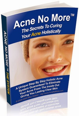 Find out more about Acne No More
