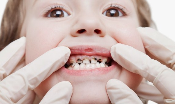 Penyebab Gigi Berlubang Pada Anak Dan Cara Mengatasinya