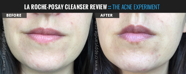La Roche-Posay Hydrating Gentle Skin Cleanser Before & After :: The Acne Experiment