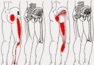 Dor no quadril Dor no glúteo Dor ciática - Músculo Glúteo Mínimo