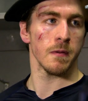 The Ovechkin's boarding of Ryan McDonagh resulted in a cut