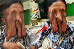 Woman Rejects Surgery For Rare Face-Melting Condition That Made Her Blind