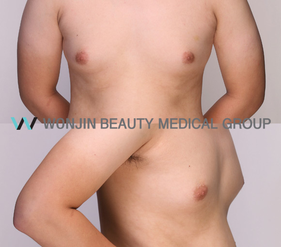 Be More Manly With Male Breast Surgery Wonjin Plastic Surgery Clinic Seoul Korea