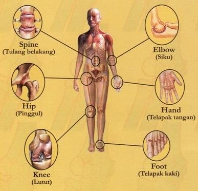 13 Penyakit Akibat Kekurangan dan Kelebihan Protein Paling Berbahaya