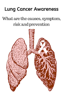 Lung Cancer Awareness: What are the causes, symptom, risk and prevention