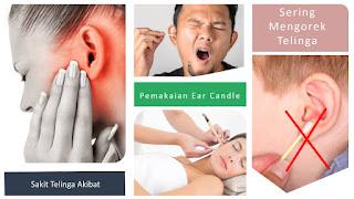 Telinga adalah salah satu organ atau bagian tubuh yang sangat penting Cara Mengatasi Telinga Sakit Dengan Cara Mudah Dan Aman