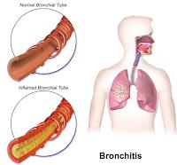 Askep Bronkitis Lengkap batuk berdahak bronkitis pada anak