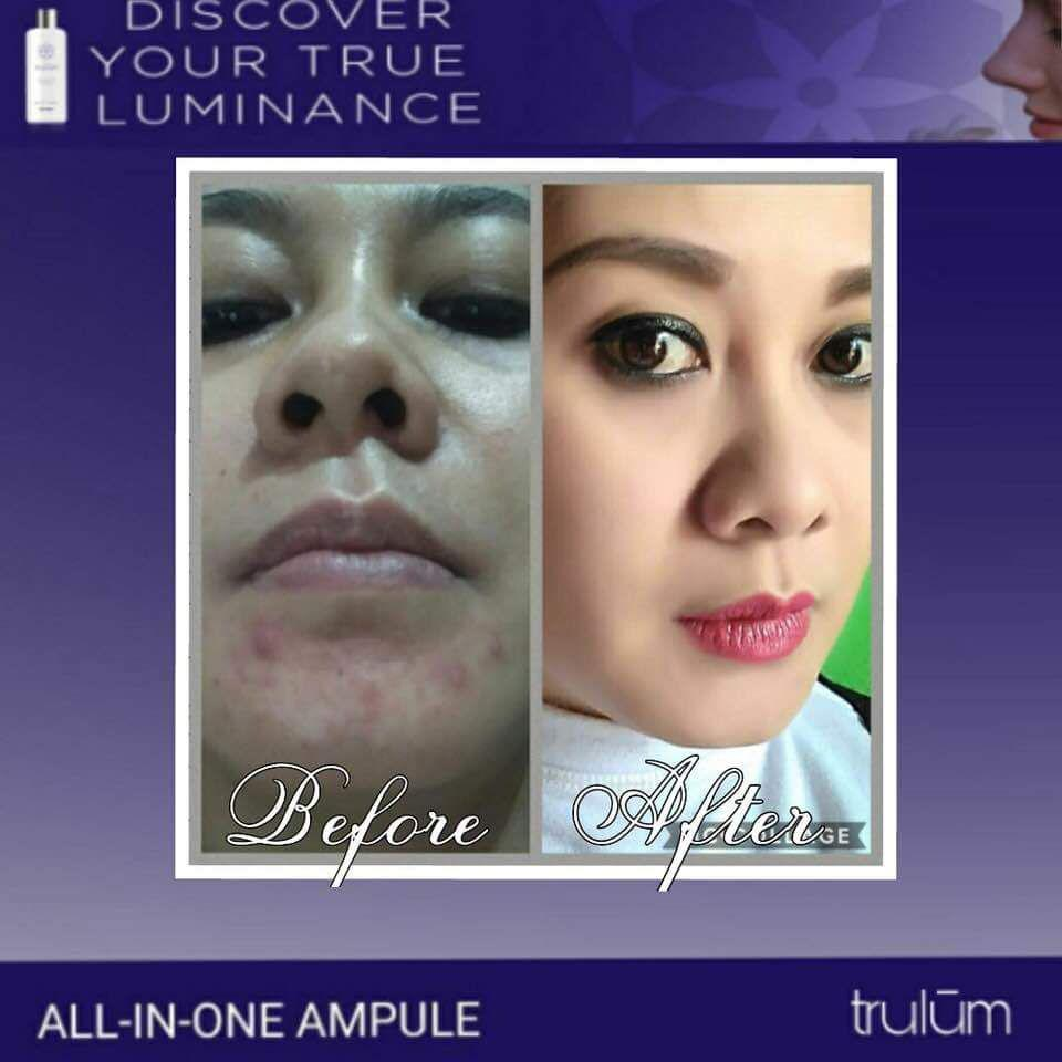 Jual Trulum All In One Ampoule Di Kota Juang WA: 08112338376