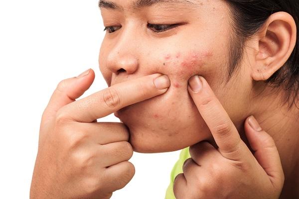 Penyebab, Pencegahan dan Pengobatan Jerawat