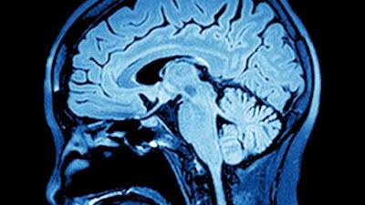 computer brain scan