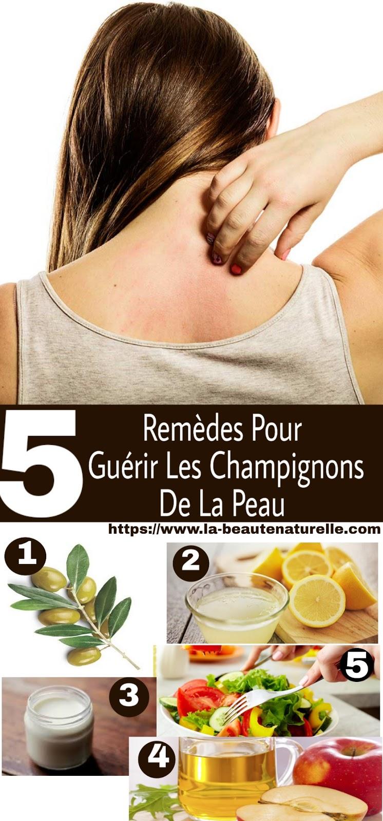 5 Remèdes Pour Guérir Les Champignons De La Peau