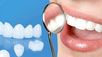 Các phương pháp trồng răng giả hiện nay