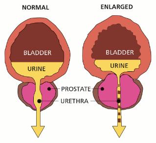 Benigna Prostat Hyperplasia (BPH)