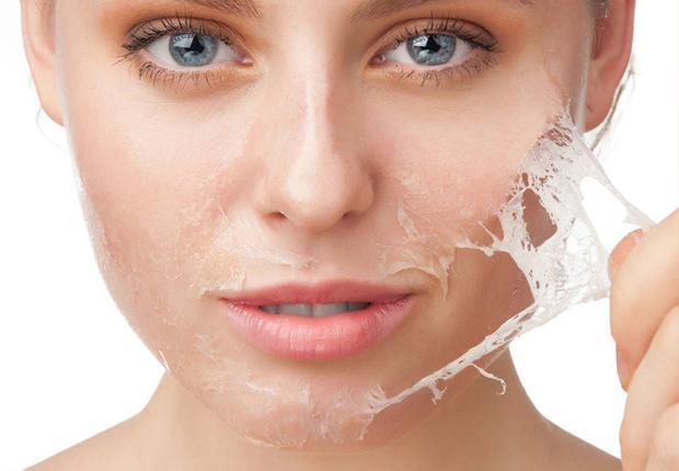 Atasi Masalah Kulit Berjerawat Dengan Tera Skincare