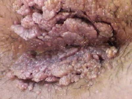 Obat Herbal Kondiloma Akuminata