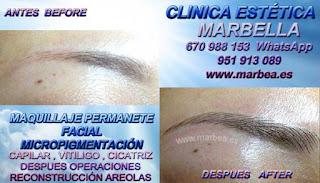 MICROPIGMENTACIÓN ALMERIA  Te proponemos la alta calidad de servicios, con los destacados especialistas en micropigmentación y maquillaje permanente Marbella y ALMERIA