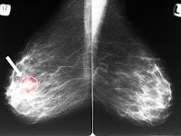 Ini Cara Bedakan Benjolan Tumor Dan Kanker Pada Payudara