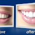 Natural teeth whitening with Rembrandt review