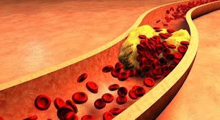Quatro em dez brasileiros adultos têm nível de colesterol alto