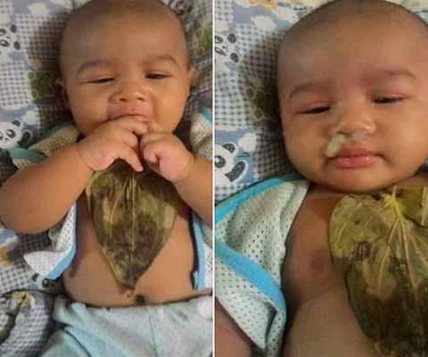 Cara Mengobati Hidung Mampet Pd Bayi - Dunia Herbal