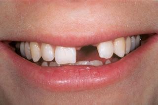 Yếu tố gây mất răng