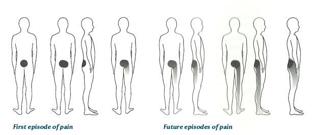 how to make sciatica pain go away