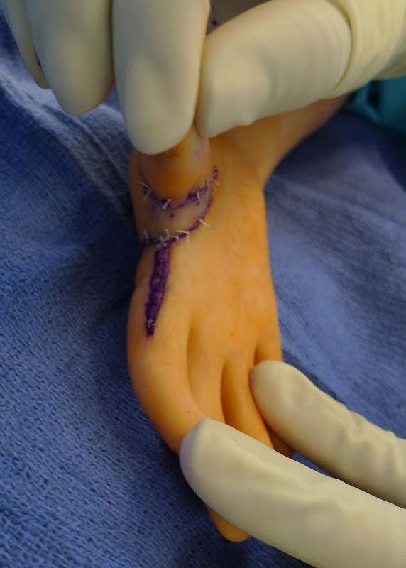 Congenital Hand And Arm Differences: The Thumb In Arthrogryposis