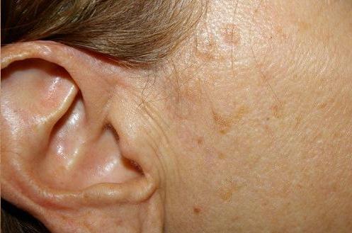file:Seborrheic Keratosis Causes Symptoms And Treatment.svg