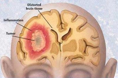 Pencegahan & Menyembuhkan : Penyakit Tumor Dengan Cara Alami